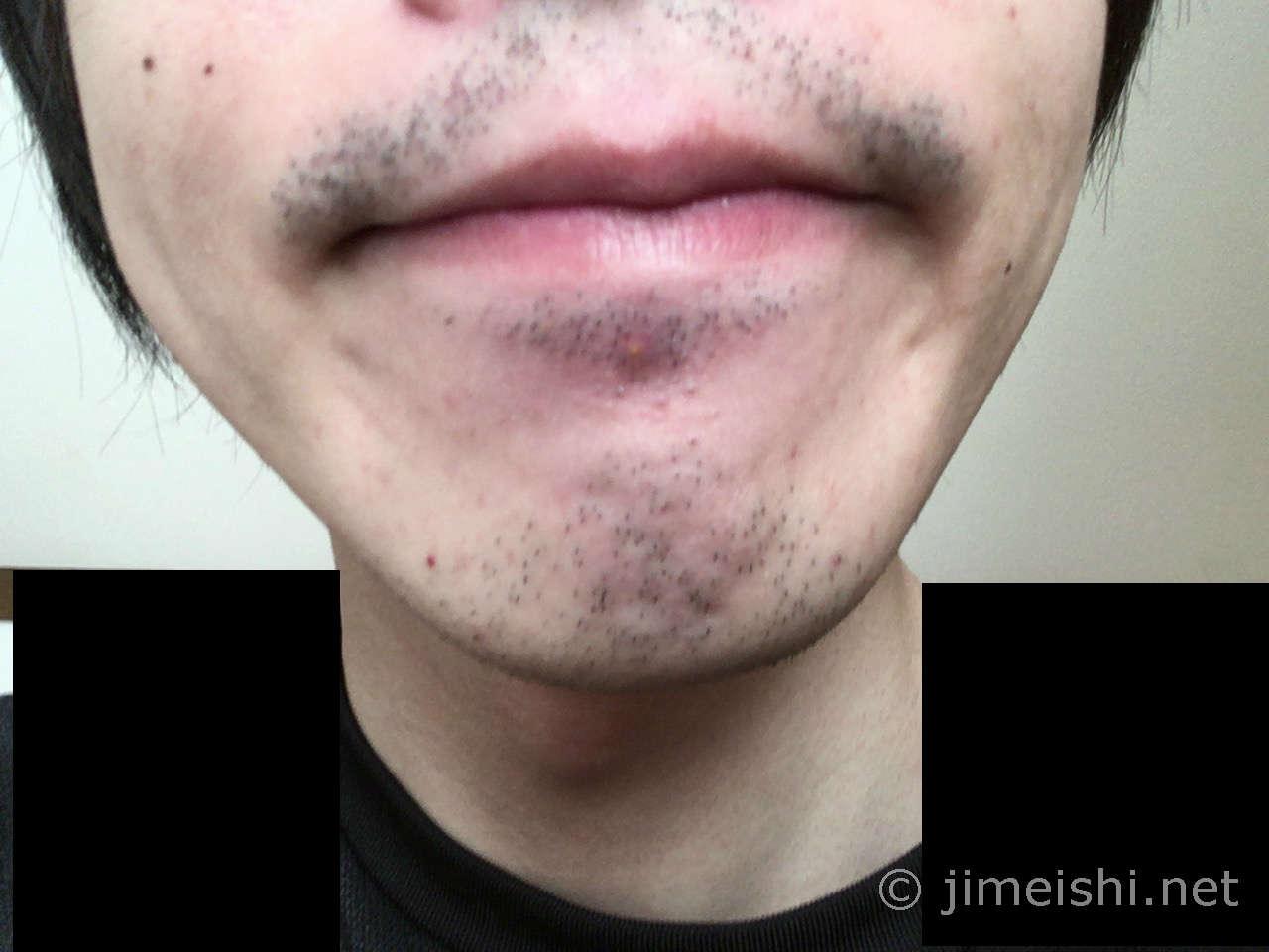 ひげ剃り前正面写真
