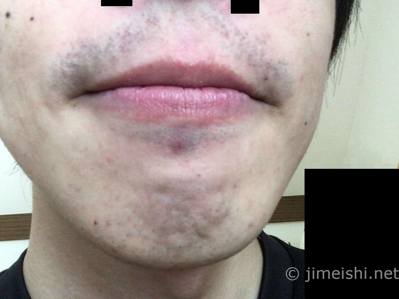 ひげ剃り後正面写真)