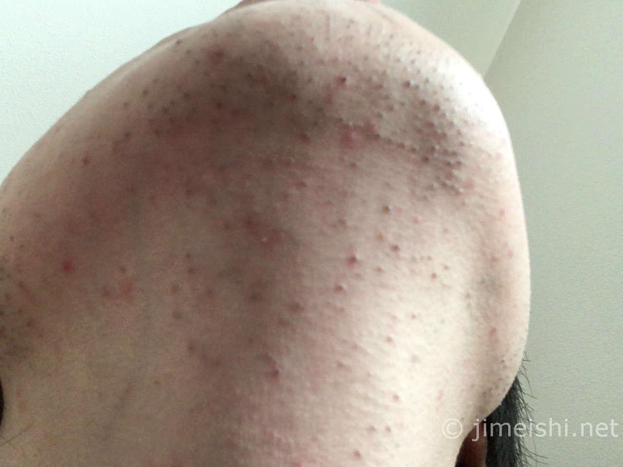 ひげ剃り後顎下写真