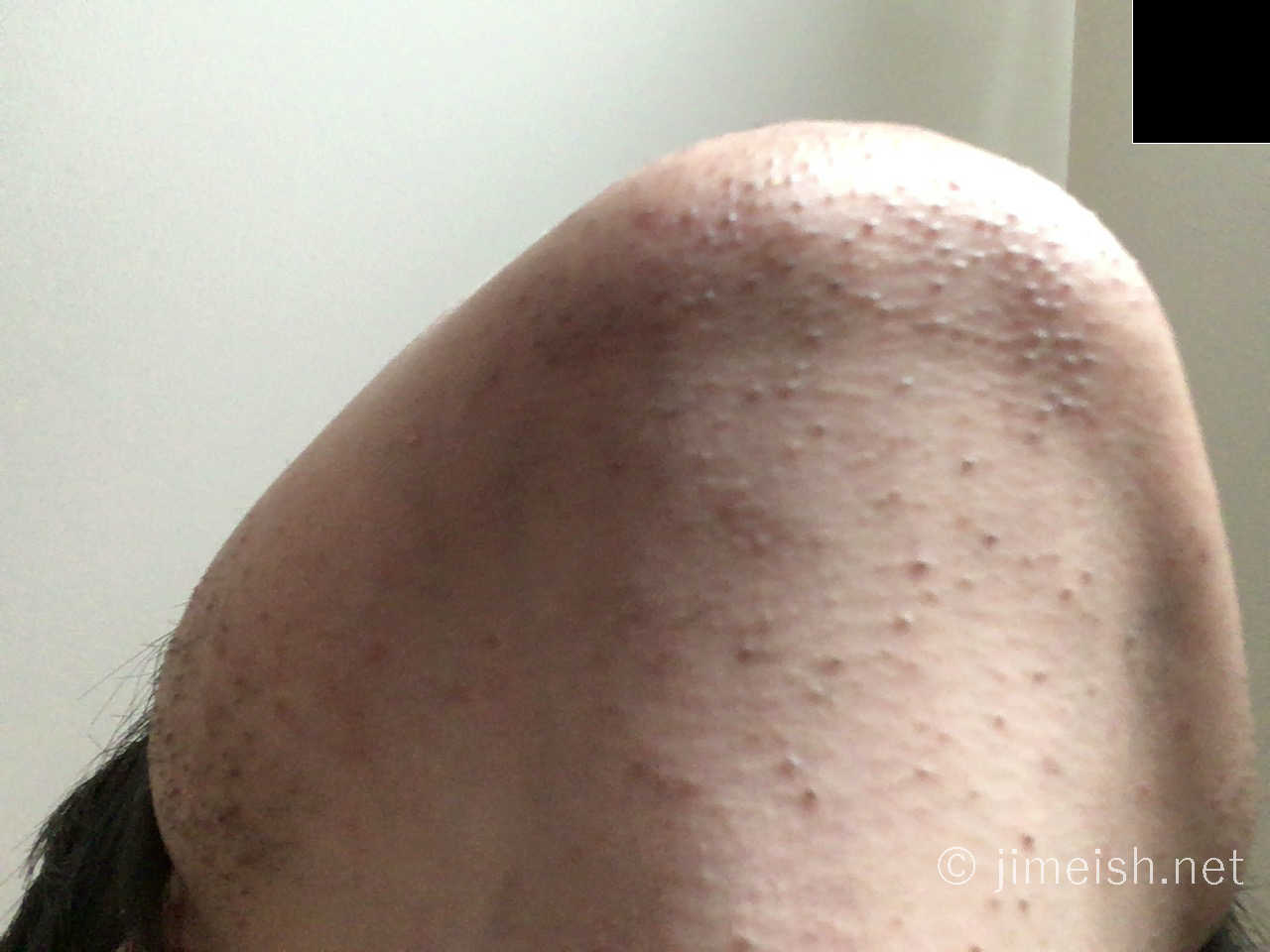 レーザー脱毛初回2日後の顎下画像