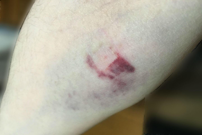 採血後の内出血画像