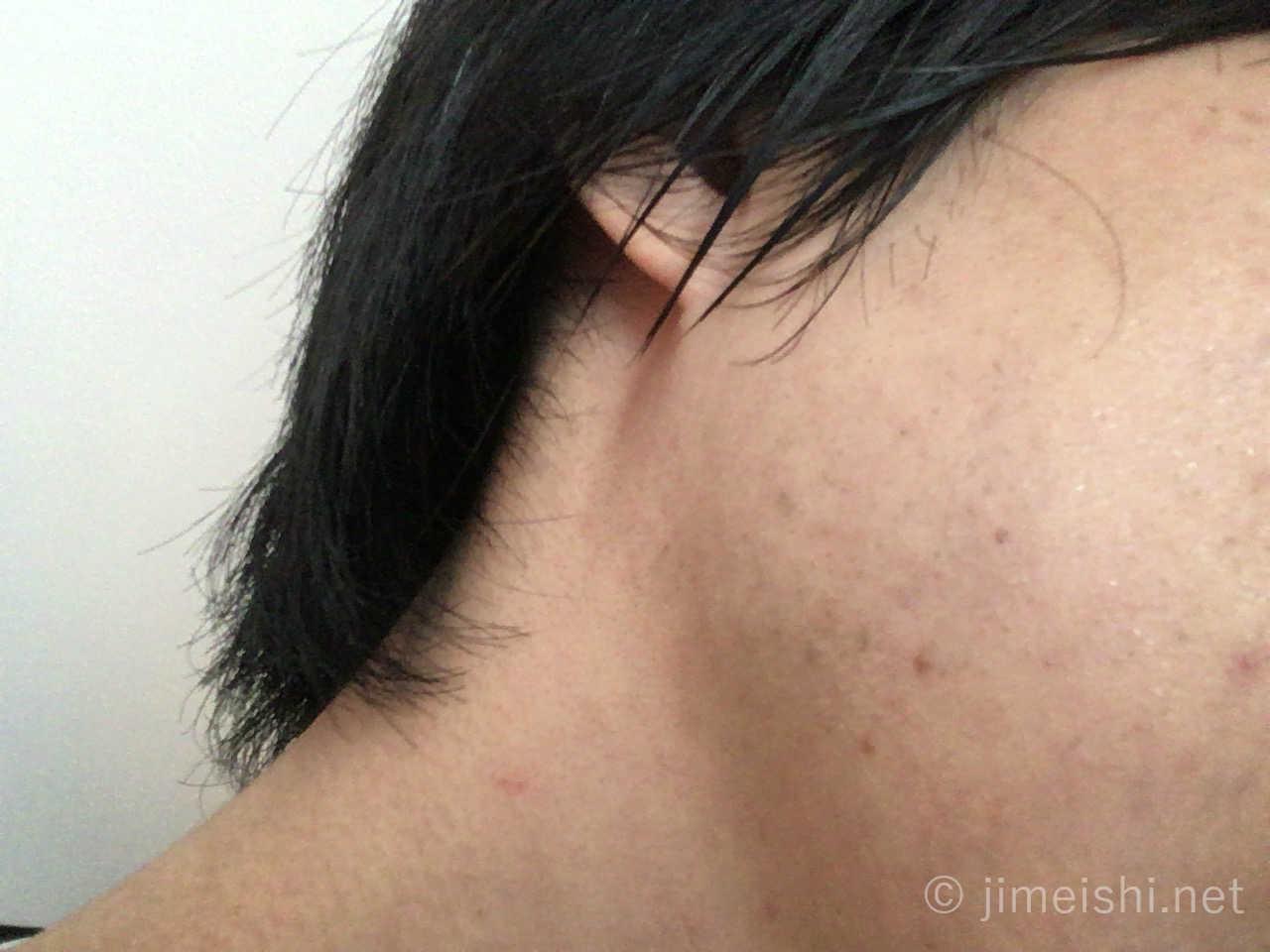 ヒゲ脱毛1年後の左頬画像